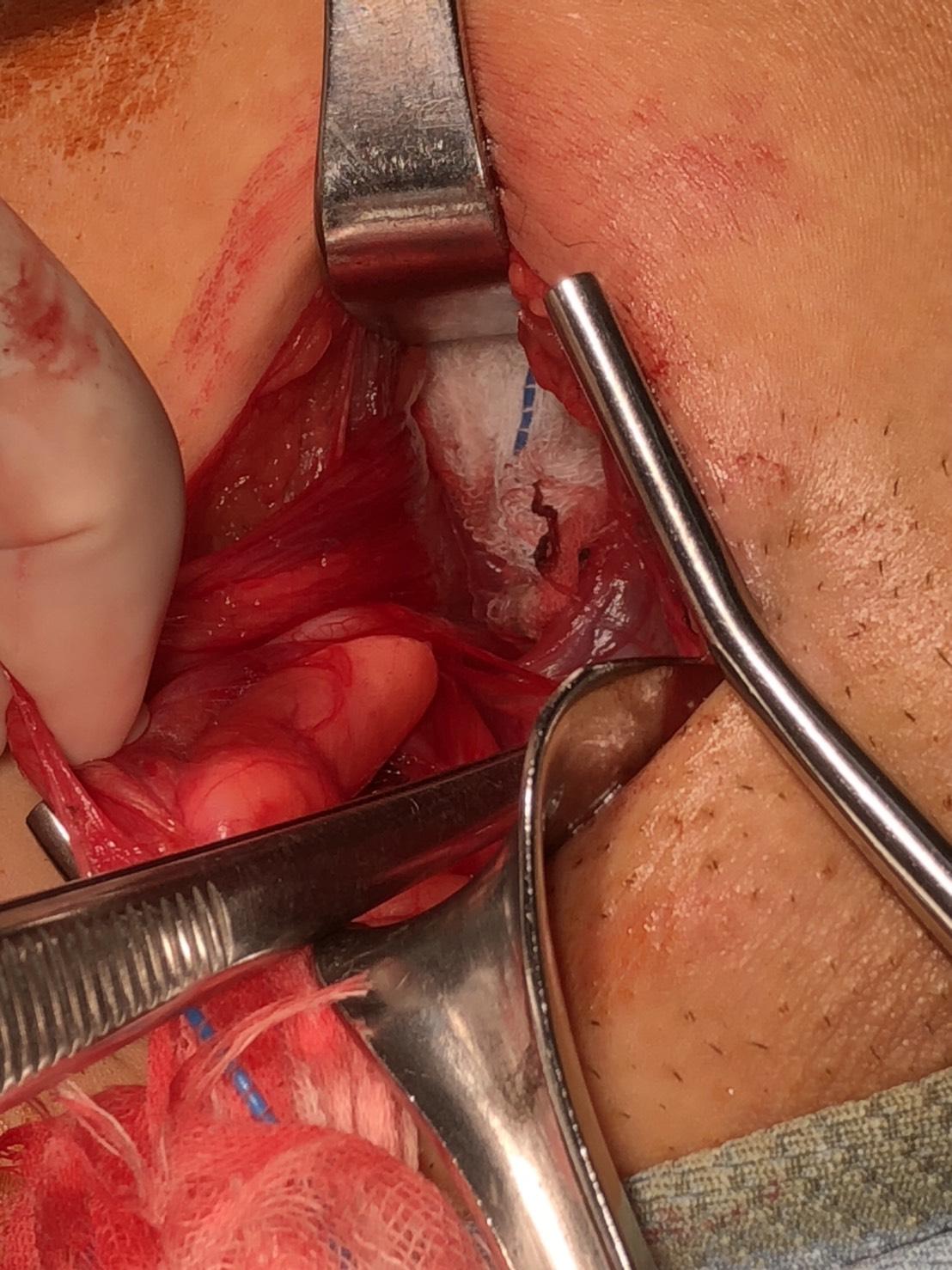 腹膜前空間